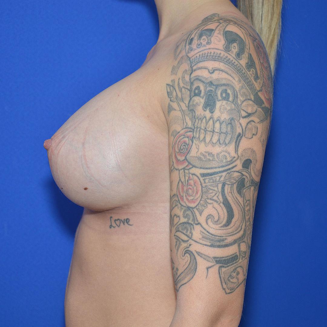 B brustvergrößerung auf dd vorher nachher Brustvergrößerung 315