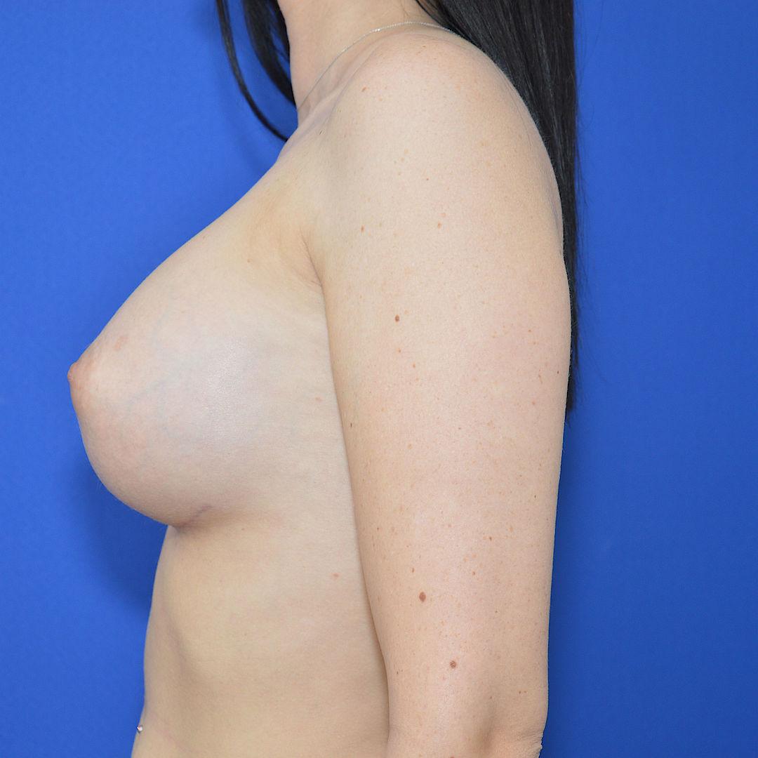 Von b bilder d brustvergrößerung auf Brustvergrößerung, Brustimplantate