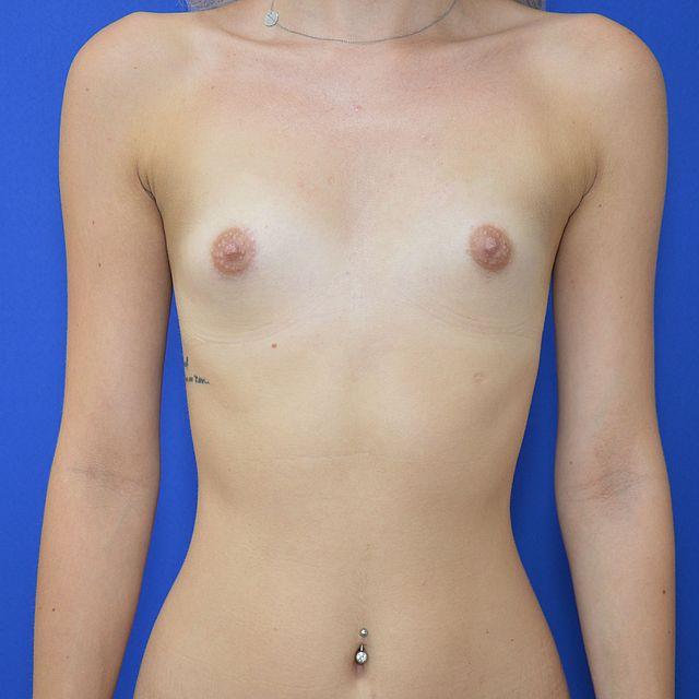 Brüste 75 c nackt