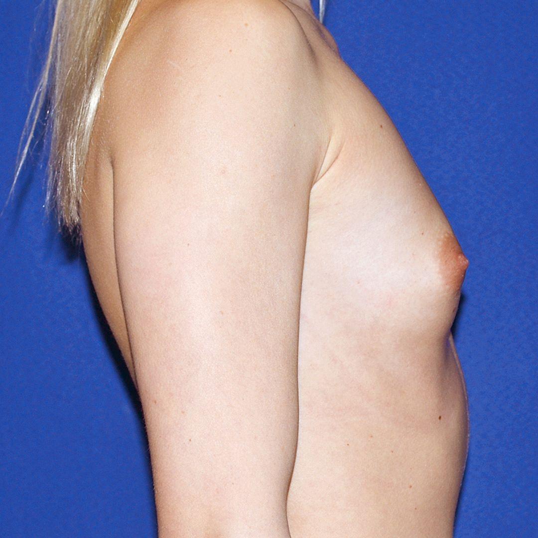 Körbchen brust op c fledcolzuter: Brust