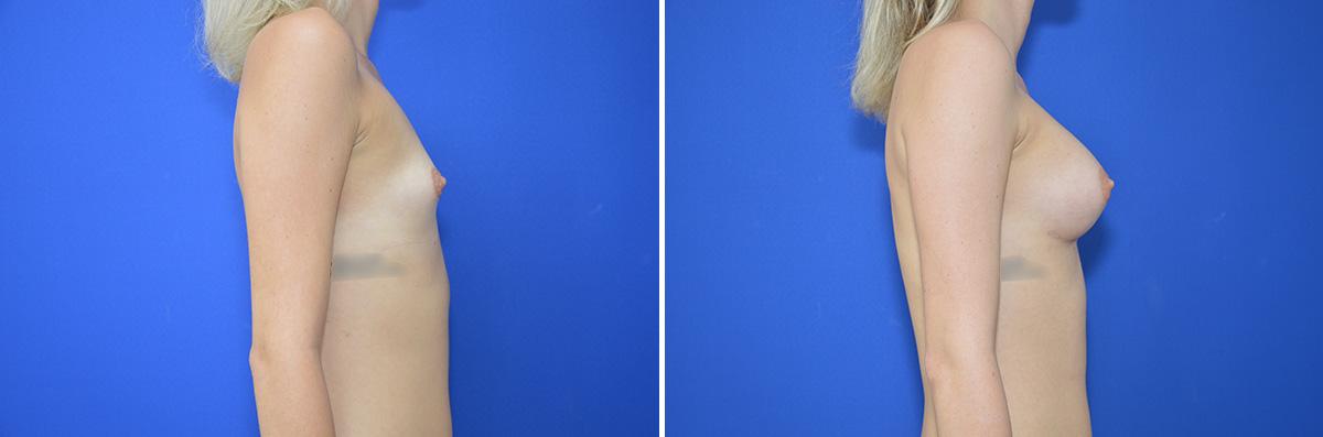 Brustvergrößerung: Vorher Nachher Fotos - Perfekte Brust